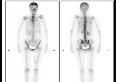 Douleurs des 2 talons lors de la marche. Hyperfixation des 2 pieds sur la scintigraphie corps entier.  Rhumatisme ? Fracture de fatigue des 2 calcanéums ?