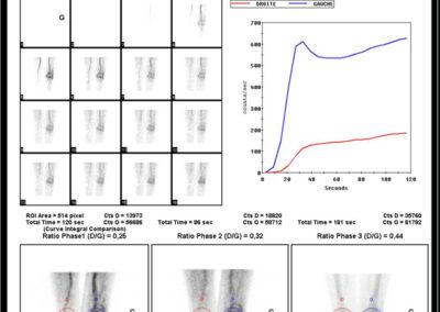 Douleur et gonflement du genou apparus dans les suites d'une intervention chirurgicale .Algodystrophie du genou gauche. Temps précoce.