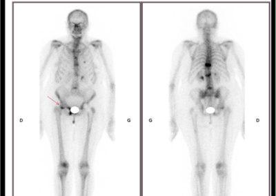Douleur de la hanche droite lors de la marche. Suspicion de fissure du col fémoral droit sur la scintigraphie osseuse corps entier.